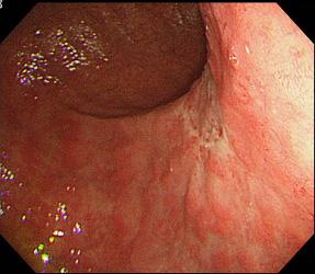 良性胃潰瘍