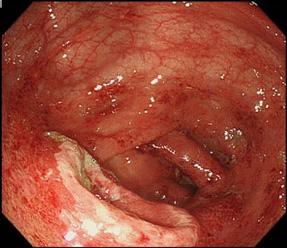 感染性腸炎